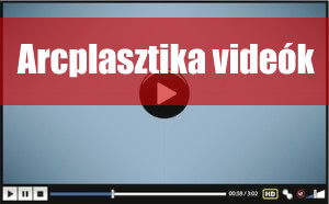 arcplasztika-video