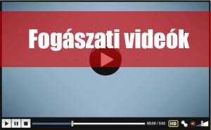 fogaszat-video