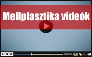 mellplasztika-video