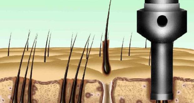 hajhullás-kezelese-hajbeultetessel