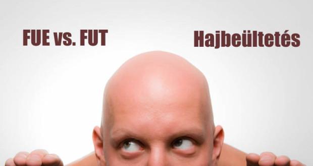 fue-vs-fut-hajbeultetes