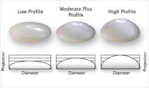 mellimplantatum-profilok