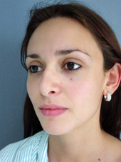 Műtét típusa  Nyitott orrplasztika. Utána képek készítésének időpontja  6  hónappal az orrplasztika után. Kiegészítő műtét  Nincs eea8a851b3