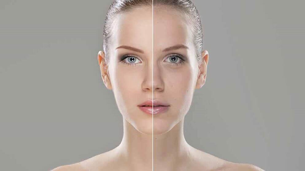 kozmetikai-kezeles-es-plasztikai-mutet