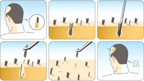 hajbeultetes-ossejtekkel